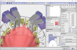 Module Bonding Jigs 3D