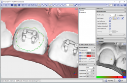 Module Bracket Erase 3D