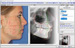Module Treatment Simulation