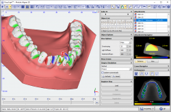 Module Aligner 3D